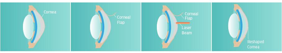 Laser eye surgery diagrams
